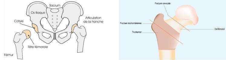 Fracture du col du Fémur à Lyon - Chirurgie de la hanche